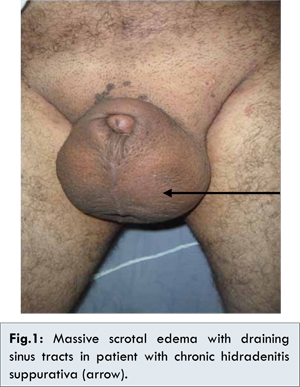 boy s testicles swollen