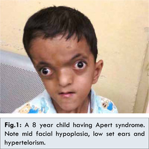 A Case of Apert Syndrome for Skull Base Repair following