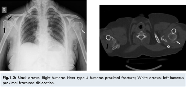 comminuted fracture humerus