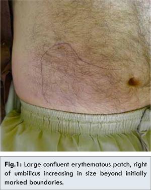 Jarisch – Herxheimer Reaction in a Patient with Disseminated Lyme