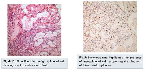 Intraductal papilloma malignant transformation - Giant intraductal papilloma