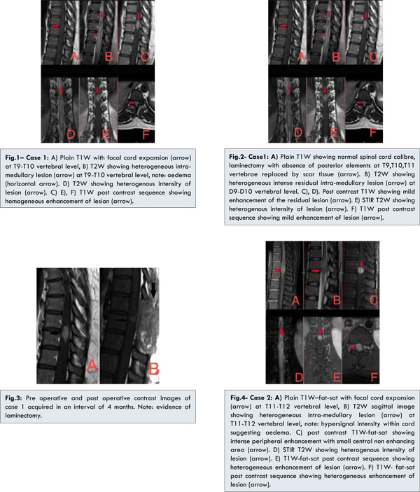 Spinal Intramedullary Tuberculoma Typical Atypical Presentation On