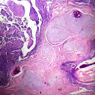 cartilaginous choristoma of palatine tonsil