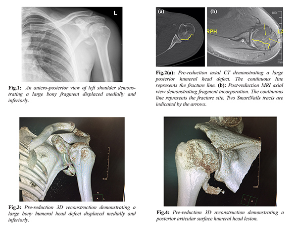 Arthroscopic Reduction and Internal Fixation of Humeral Head Osteo ...
