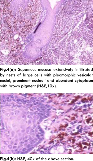 Primary Oral Malignant Melanoma