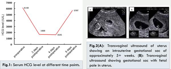Unexpected Heterotopic Pregnancy in the Postoperative Period